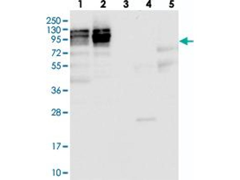 Western Blotting (WB) image for anti-Nucleolar Protein 1 (NOL1) antibody (ABIN5584610)