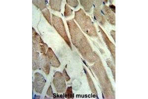 Image no. 1 for anti-Creatine Kinase, Muscle (CKM) antibody (ABIN3002974)