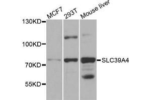 Image no. 1 for anti-Solute Carrier Family 39 (Zinc Transporter), Member 4 (SLC39A4) antibody (ABIN1682781)