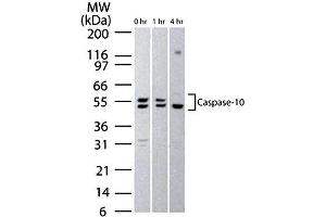 Western Blotting (WB) image for anti-Caspase 10, Apoptosis-Related Cysteine Peptidase (CASP10) (N-Term) antibody (ABIN153034)