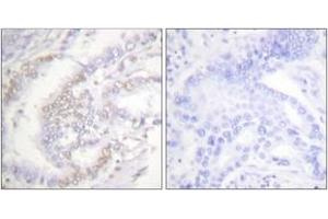 Image no. 2 for anti-Fanconi Anemia, Complementation Group D2 (FANCD2) (AA 188-237), (pSer222) antibody (ABIN1531273)