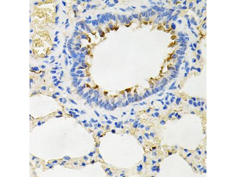 Immunohistochemistry (Paraffin-embedded Sections) (IHC (p)) image for anti-Interleukin-1 Receptor-Associated Kinase 2 (IRAK2) antibody (ABIN2974218)