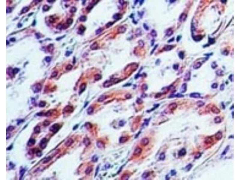 Immunohistochemistry (Paraffin-embedded Sections) (IHC (p)) image for anti-Tumor Necrosis Factor (Ligand) Superfamily, Member 10 (TNFSF10) antibody (ABIN252480)