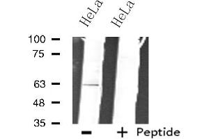 Image no. 1 for anti-Zinc Finger Protein 18 (ZNF18) antibody (ABIN6257561)