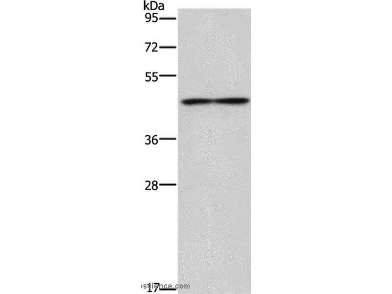 Western Blotting (WB) image for anti-IL5RA antibody (Interleukin 5 Receptor, alpha) (ABIN2434824)