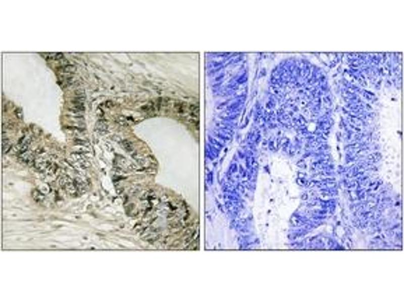 Immunohistochemistry (IHC) image for anti-GRB2-Associated Binding Protein 2 (GAB2) (AA 125-174) antibody (ABIN1533138)