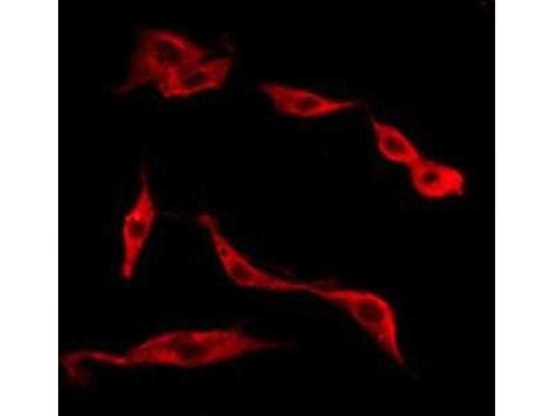 Immunofluorescence (fixed cells) (IF/ICC) image for anti-Tachykinin Receptor 1 (TACR1) antibody (ABIN6265431)