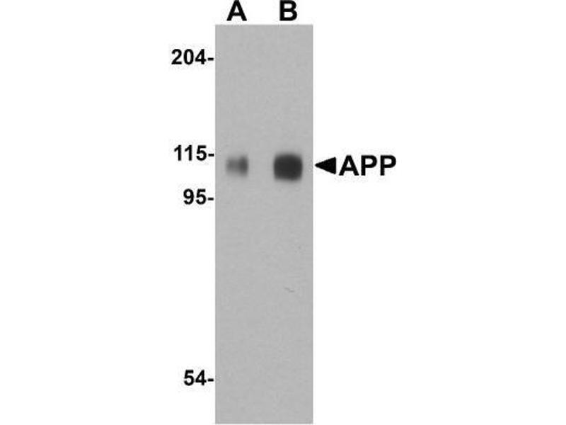 Western Blotting (WB) image for anti-Amyloid beta (A4) Precursor Protein (APP) (C-Term) antibody (ABIN4281249)