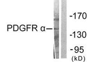 Image no. 1 for anti-Platelet-Derived Growth Factor Receptor, alpha Polypeptide (PDGFRA) (AA 1031-1080) antibody (ABIN1533378)