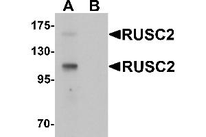 Image no. 1 for anti-RUN and SH3 Domain Containing 2 (RUSC2) (N-Term) antibody (ABIN1031548)