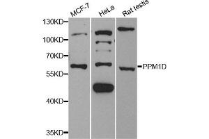 Western Blotting (WB) image for anti-Protein Phosphatase, Mg2+/Mn2+ Dependent, 1D (PPM1D) antibody (ABIN1882331)
