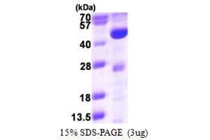 Image no. 1 for Acyl-CoA Dehydrogenase, Long Chain (ACADL) (AA 31-430) protein (His tag) (ABIN667975)