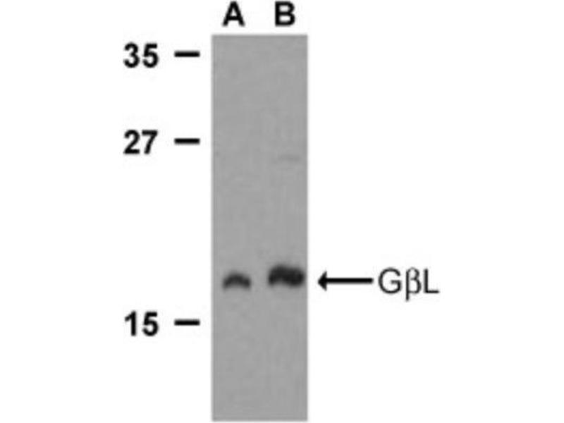 Western Blotting (WB) image for anti-MLST8 Antikörper (MTOR Associated Protein, LST8 Homolog (S. Cerevisiae)) (C-Term) (ABIN4313694)
