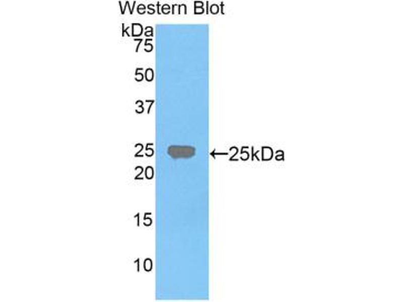 Western Blotting (WB) image for anti-Farnesyl-Diphosphate Farnesyltransferase 1 (FDFT1) (AA 217-416) antibody (ABIN2928744)