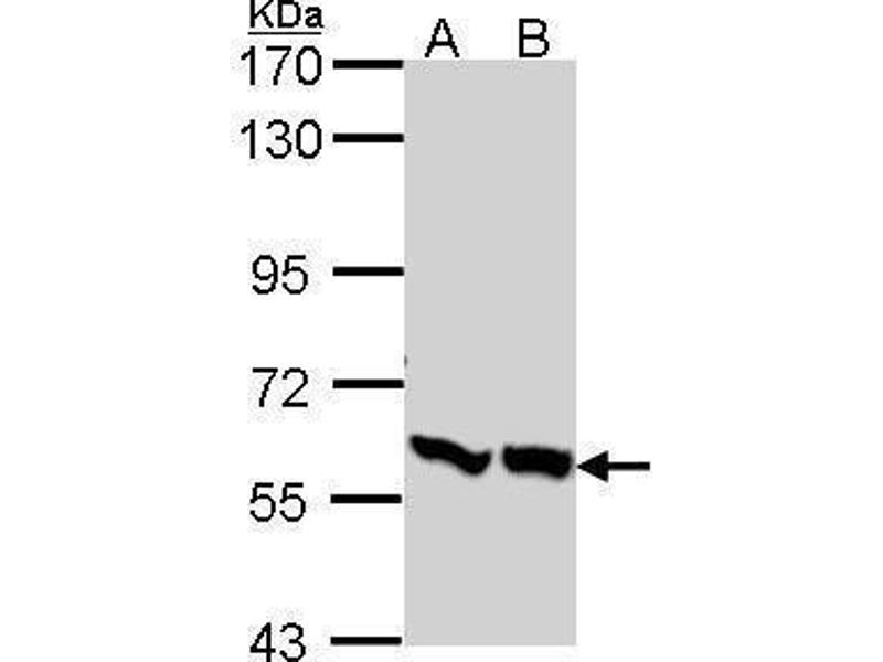 Western Blotting (WB) image for anti-PFKFB3 antibody (6-phosphofructo-2-Kinase/fructose-2,6-Biphosphatase 3) (AA 457-520) (ABIN554503)