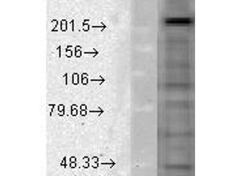 image for anti-Calcium Channel, Voltage-Dependent, L Type, alpha 1D Subunit (CACNA1D) (AA 859-875) antibody (ABIN361760)