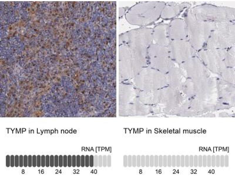 Immunohistochemistry (Paraffin-embedded Sections) (IHC (p)) image for anti-Thymidine Phosphorylase (TYMP) antibody (ABIN4344327)