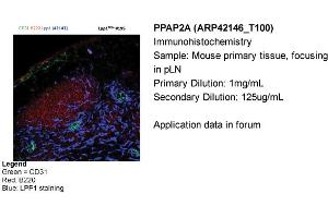 Image no. 2 for anti-Phosphatidic Acid Phosphatase Type 2A (PPAP2A) (Middle Region) antibody (ABIN2777163)