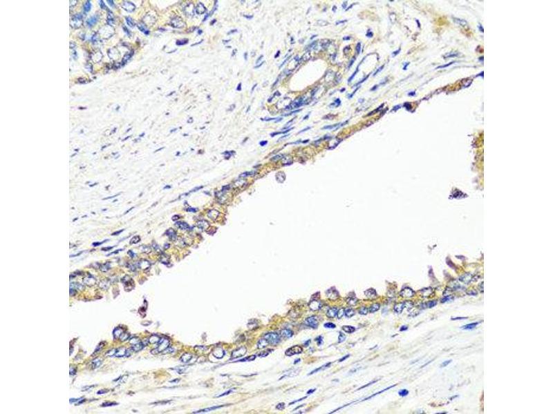 Immunohistochemistry (IHC) image for anti-Insulin (INS) antibody (ABIN1873240)