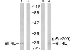 Image no. 1 for anti-Eukaryotic Translation Initiation Factor 4E (EIF4E) (Ser209) antibody (ABIN1576238)