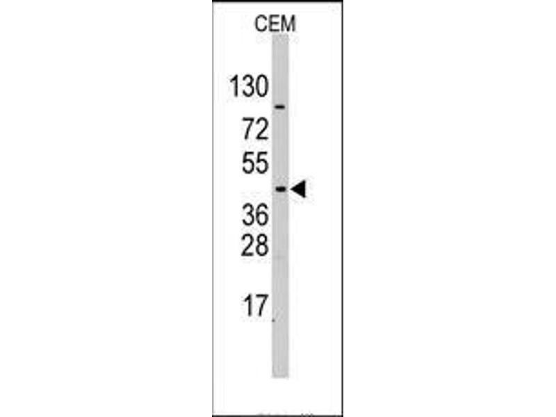 Western Blotting (WB) image for anti-Pyruvate Dehydrogenase Kinase, Isozyme 4 (PDK4) (Middle Region) antibody (ABIN359099)