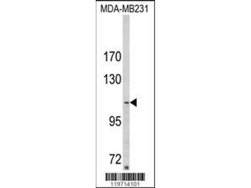 Western Blotting (WB) image for anti-Sorbin and SH3 Domain Containing 2 (Sorbs2) (AA 175-204), (N-Term) antibody (ABIN652279)