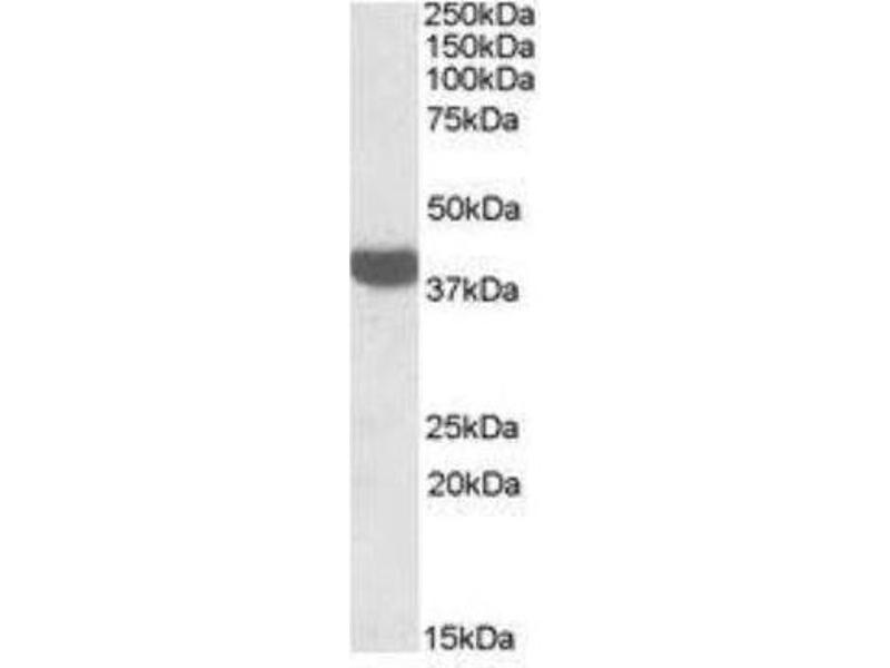 Western Blotting (WB) image for anti-Arginase, Liver (ARG1) (C-Term) antibody (ABIN252947)