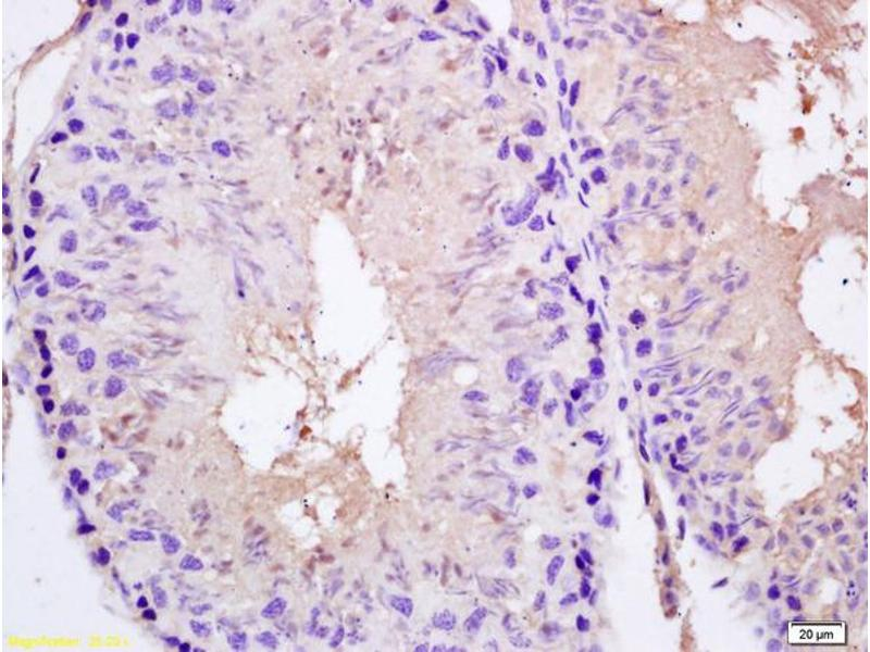 Immunohistochemistry (IHC) image for anti-Sperm Associated Antigen 5 (SPAG5) (AA 1120-1170) antibody (ABIN672261)