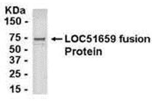 Image no. 1 for anti-Transporter 2, ATP-Binding Cassette, Sub-Family B (MDR/TAP) (TAP2) (AA 1-185) antibody (ABIN2468064)