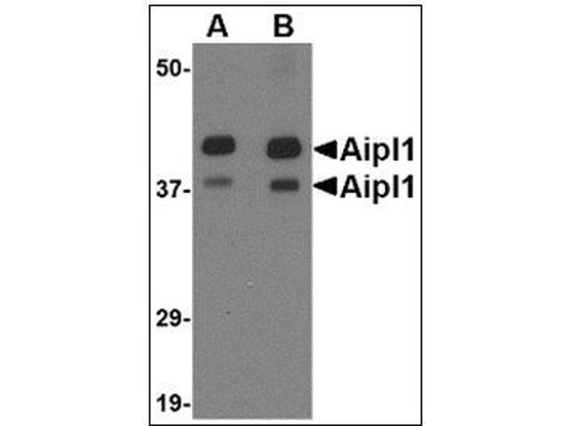 Western Blotting (WB) image for anti-Aryl Hydrocarbon Receptor Interacting Protein-Like 1 (AIPL1) (Center) antibody (ABIN615383)