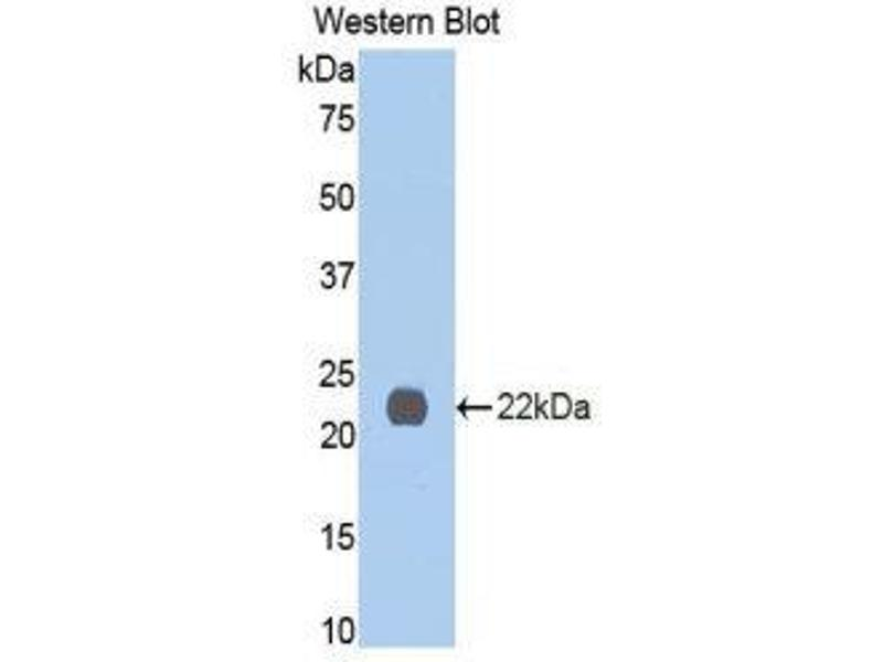 Western Blotting (WB) image for anti-Interleukin 13 Receptor, alpha 1 (IL13RA1) (AA 201-360) antibody (ABIN1859340)