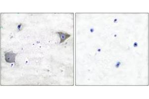 Image no. 2 for anti-Platelet-Derived Growth Factor Receptor, alpha Polypeptide (PDGFRA) (AA 1031-1080) antibody (ABIN1533378)