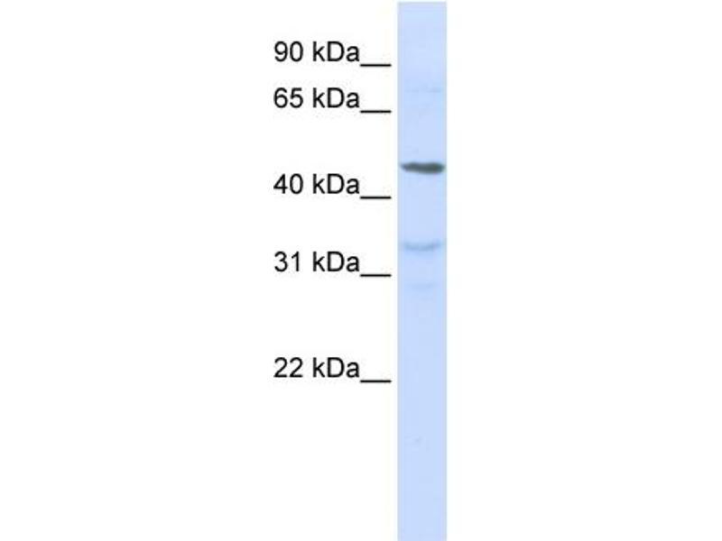 Western Blotting (WB) image for anti-Interleukin 28 Receptor, alpha (Interferon, lambda Receptor) (IL28RA) (N-Term) antibody (ABIN2783214)