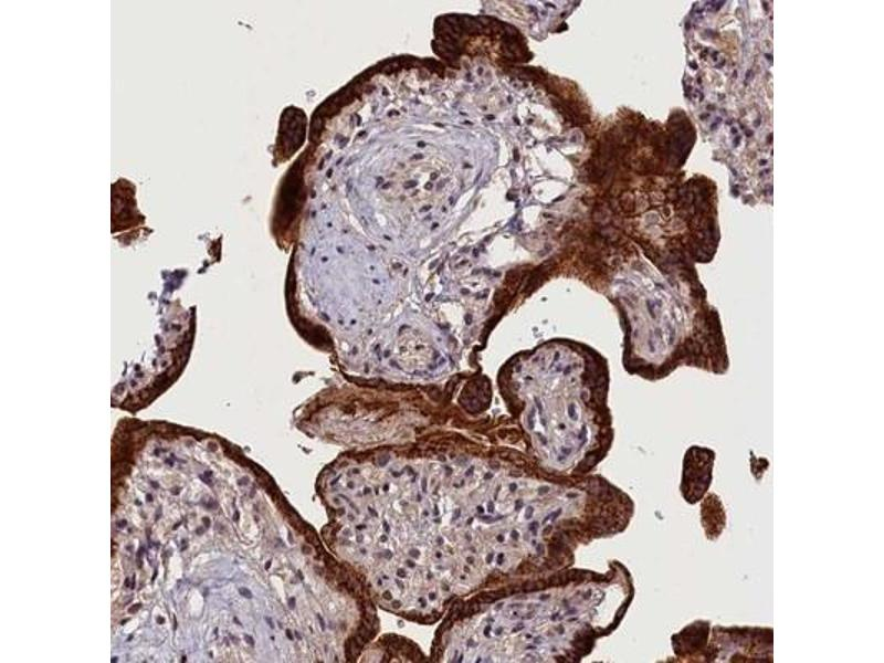 Immunohistochemistry (IHC) image for anti-Calcium Channel, Voltage-Dependent, T Type, alpha 1H Subunit (CACNA1H) antibody (ABIN4288334)