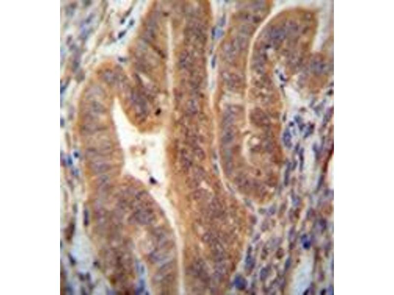 Immunohistochemistry (Paraffin-embedded Sections) (IHC (p)) image for anti-KIAA1644 (KIAA1644) (AA 25-55), (N-Term) antibody (ABIN953065)
