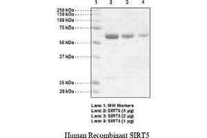 Image no. 1 for Sirtuin 5 (SIRT5) protein (GST tag) (ABIN1526012)