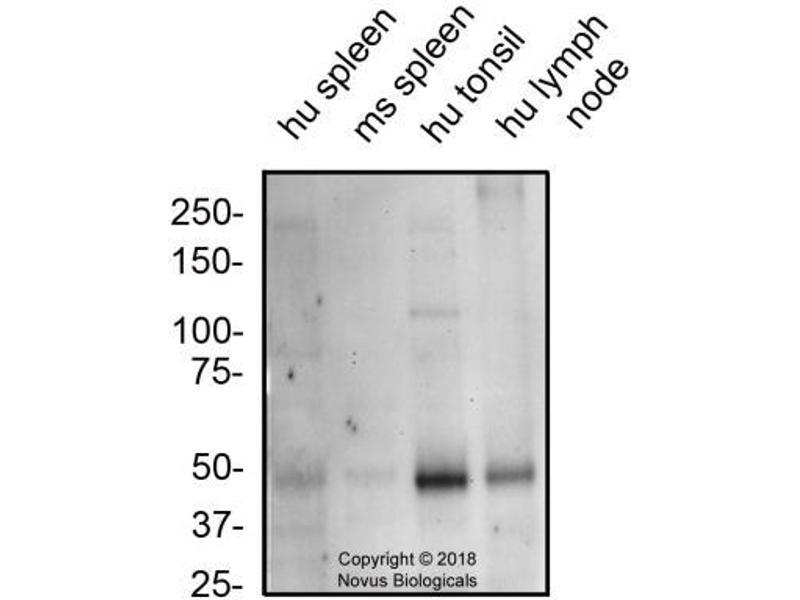 Western Blotting (WB) image for anti-Chemokine (C-X-C Motif) Receptor 7 (CXCR7) antibody (ABIN4301378)