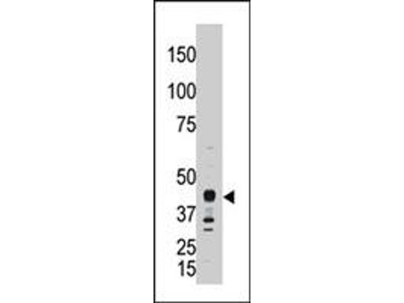 Image no. 2 for anti-Apolipoprotein B mRNA Editing Enzyme, Catalytic Polypeptide-Like 3G (APOBEC3G) antibody (ABIN543434)