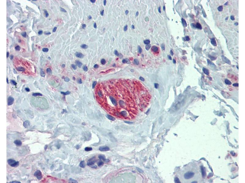 Immunohistochemistry (IHC) image for anti-Tubulin, beta 2A (TUBB2A) (Middle Region) antibody (ABIN2778647)