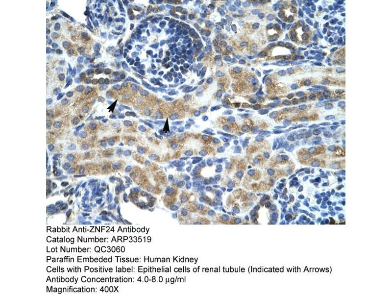 Immunohistochemistry (IHC) image for anti-Zinc Finger Protein 24 (ZNF24) (Middle Region) antibody (ABIN182823)