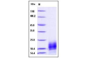 Image no. 1 for Chemokine (C Motif) Ligand 1 (XCL1) (AA 1-114) protein (His tag) (ABIN2009802)