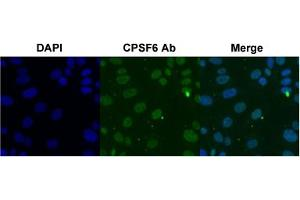 Image no. 1 for anti-Cleavage and Polyadenylation Specific Factor 6, 68kDa (CPSF6) antibody (ABIN5575909)