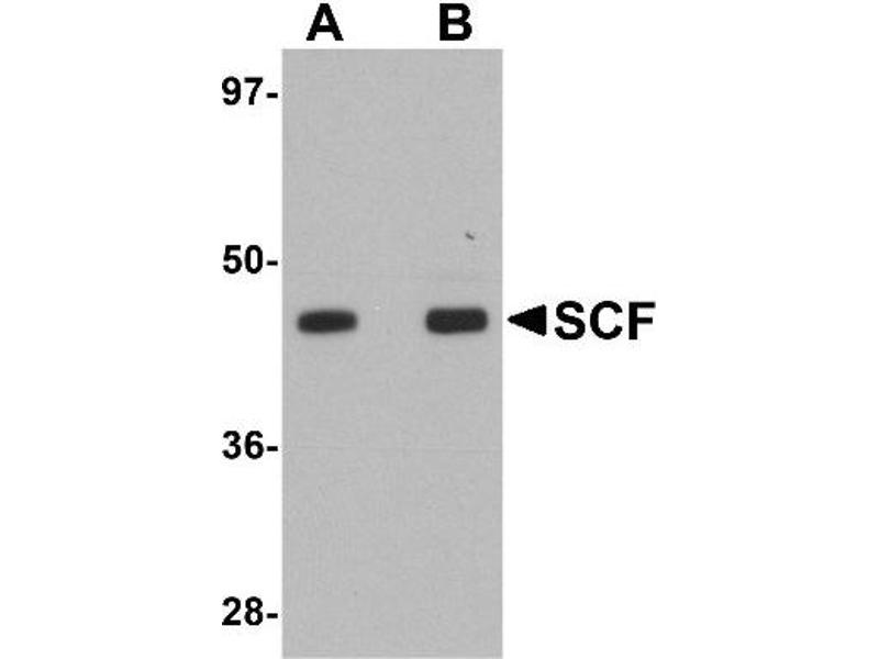 Western Blotting (WB) image for anti-KIT Ligand antibody (KITLG) (Center) (ABIN4352192)