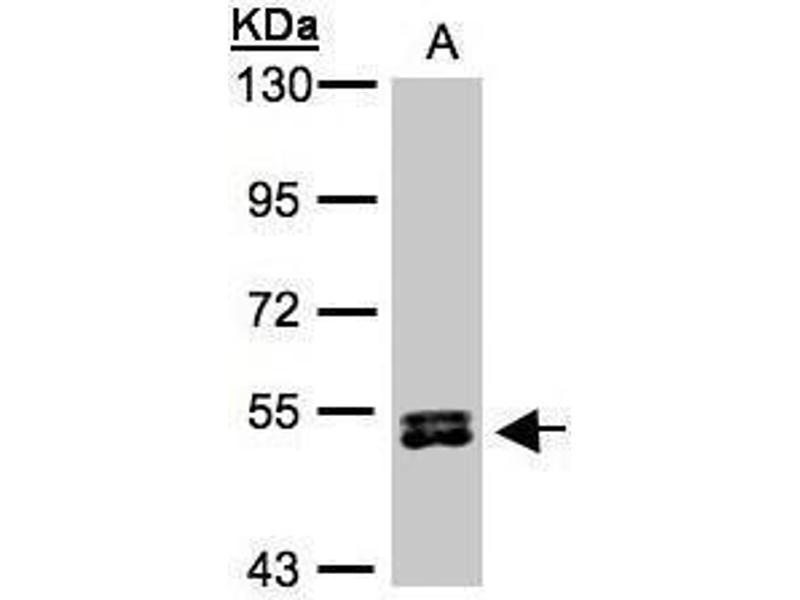 Western Blotting (WB) image for anti-Ribosomal Protein S6 Kinase, 70kDa, Polypeptide 2 (RPS6KB2) (Center) antibody (ABIN2855217)