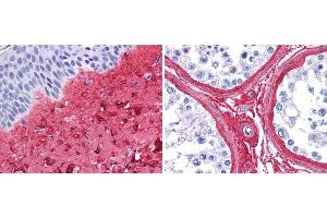 Image no. 1 for anti-Collagen, Type III (COL3) antibody (ABIN5596829)