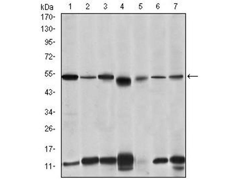 Western Blotting (WB) image for anti-Interleukin-1 Receptor-Associated Kinase 4 (IRAK4) antibody (ABIN1107881)