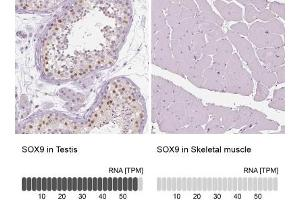 Immunohistochemistry (Paraffin-embedded Sections) (IHC (p)) image for anti-SRY (Sex Determining Region Y)-Box 9 (SOX9) antibody (ABIN4355424)
