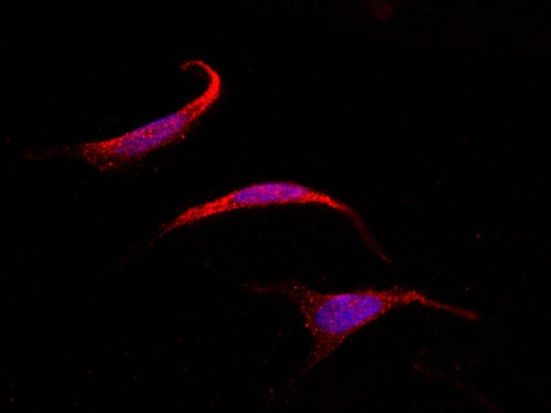 Immunofluorescence (IF) image for anti-Suppressor of Cytokine Signaling 4 (SOCS4) (C-Term) antibody (ABIN5508477)