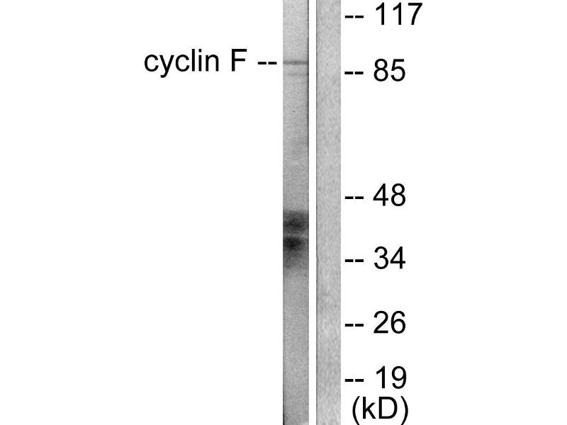 Image no. 1 for anti-Cyclin F (CCNF) antibody (ABIN1575940)