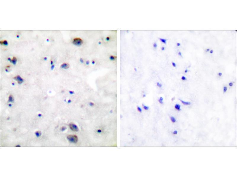 Immunohistochemistry (IHC) image for anti-Mu Opioid Receptor 1 antibody (Opioid Receptor, mu 1) (Ser375) (ABIN2449336)